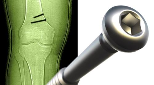 Knochenschraube für die Medizintechnik